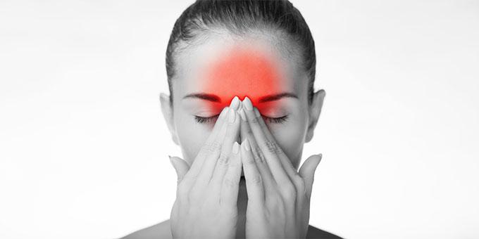 CBD migraines