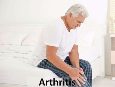Medical-Marijuana-Canada-weed-for-Arthritis